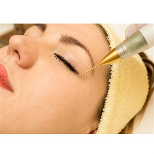 Jett Plasma Lift Medical- Lifting Corporal e Facial, intervenções dermatológicas e pequenas cirurgias