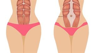 Diástase, quando os músculos pélvicos/abdominais se separam