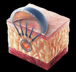 Sonofocus Ibramed Aparelho de Lipocavitação Focalizada