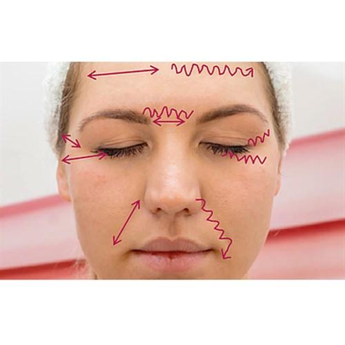 Jett Plasma Lift Profi - A revolução para os seus tratamentos faciais e corporais
