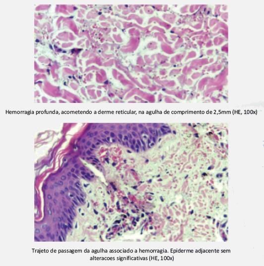 Microagulhas Derma Erase