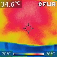 Thermopulse - Aparelho de Diatermia por Ondas Curtas